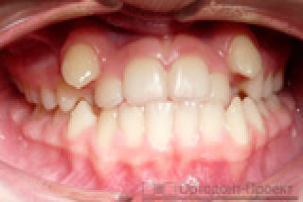 Не ровно растет зуб не хватает места