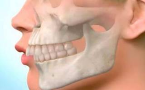 У ребенка узкая нижняя челюсть