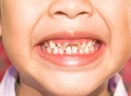 Кариес сбоку зуба около десны как лечат