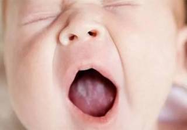 У ребенка 3 года белый налет на небе